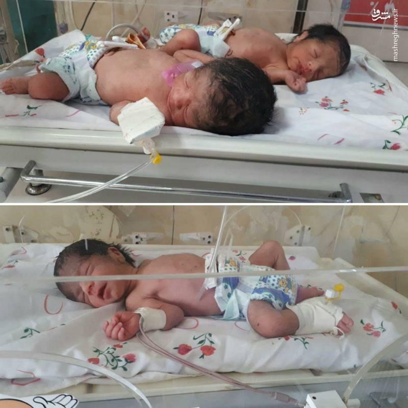 تولد نوزادان دختر سه قلو