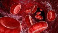 کم خونی چه بلایی سرتان می آورد