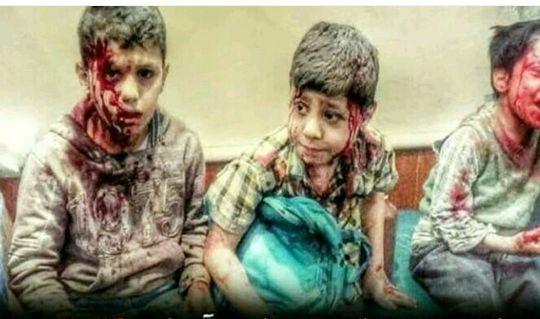 در یمن چه خبر است + تصاویر