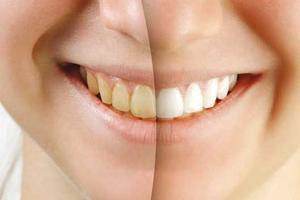باماست و پنیر دندانهایتان را سفید کنید