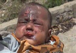 آخرین آمار جنایت سعودیها در یمن