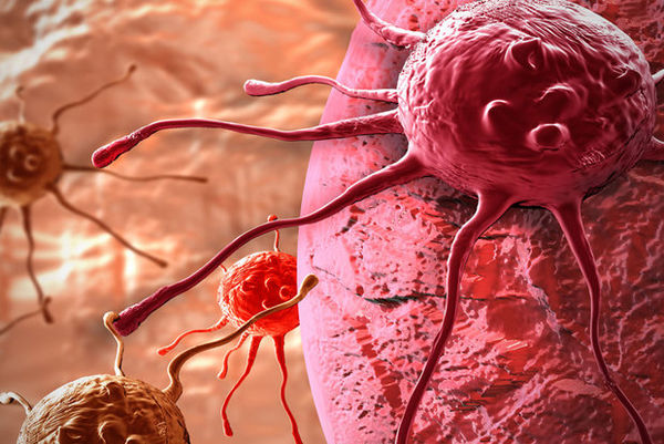 غدههای مرگ در مری گلستانیها/ مبتلایان به سرطان رو به افزایش