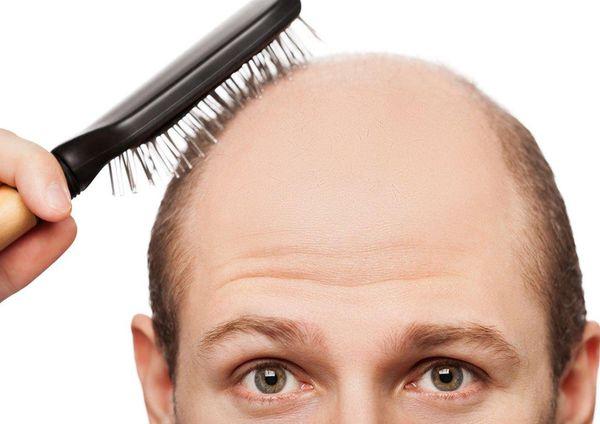 نسخه طلایی برای درمان ریزش مو