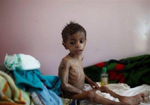 هشدار ۱۴ سازمان بینالمللی درباره وخامت بحران انسانی یمن
