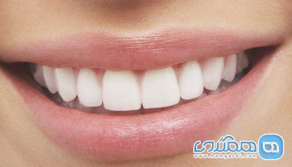 مصرف طولانی مدت از خمیردندان های سفید کننده ممنوع