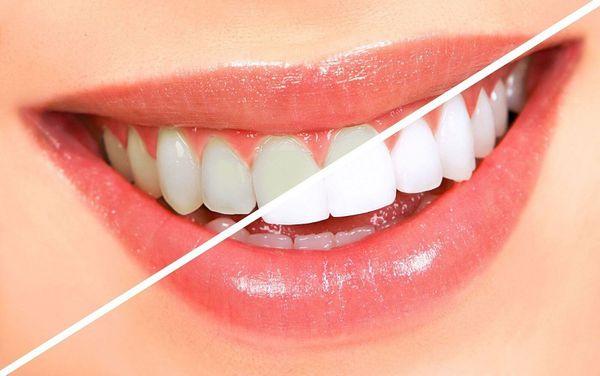 دندان هایتان را خودتان سفید کنید