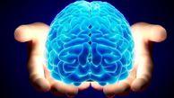 عجیبترین علامت سکته مغزی در افراد