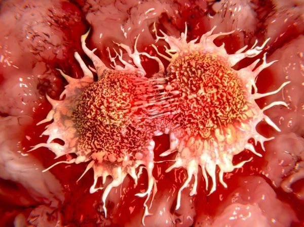 سرطان دیگر مرگبار نیست