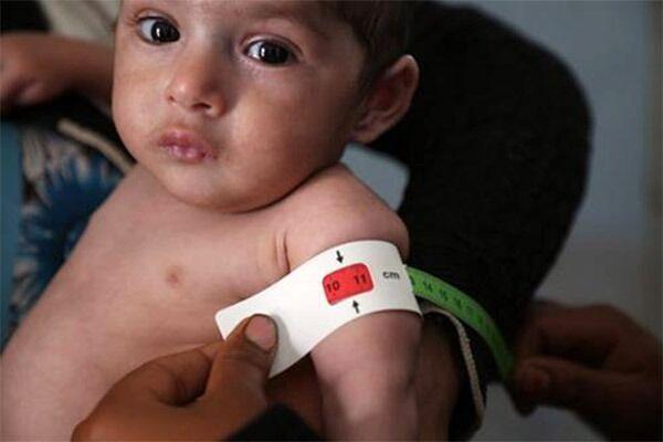 کمیته امداد گلستان از ۲ هزار کودک دچار سوء تغذیه حمایت میکند