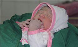 نوزادی با دل و روده بیرون زده