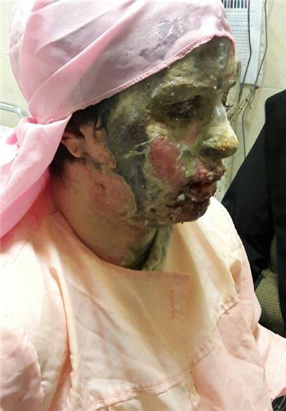 اسید پاشی وحشیانه روی دختر جوان 26 ساله + تصاویر