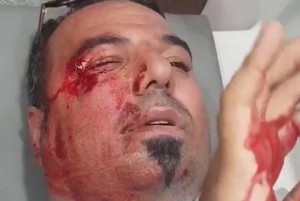فیلم/ مجروحیت چشم هوادار استقلال بر اثر پرتاب سنگ